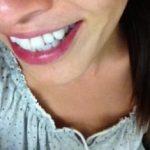 あんなに黄色かった歯が…。歯医者さんの方法を試したらたったの1ヶ月で…。